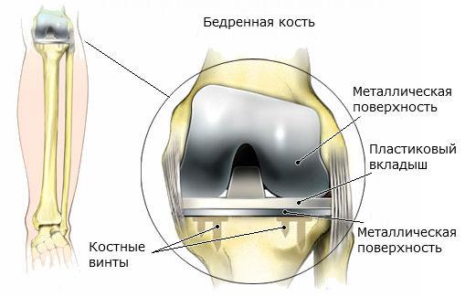 Предохранение коленного сустава после эндопротезирования история болезни разрыв связок голеностопного сустава