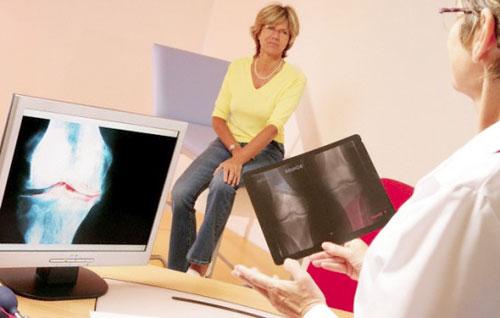 Дисторсия коленного сустава