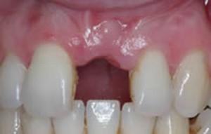 Как восстановить утерянный зуб?