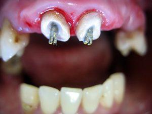 Доступное восстановление зубов